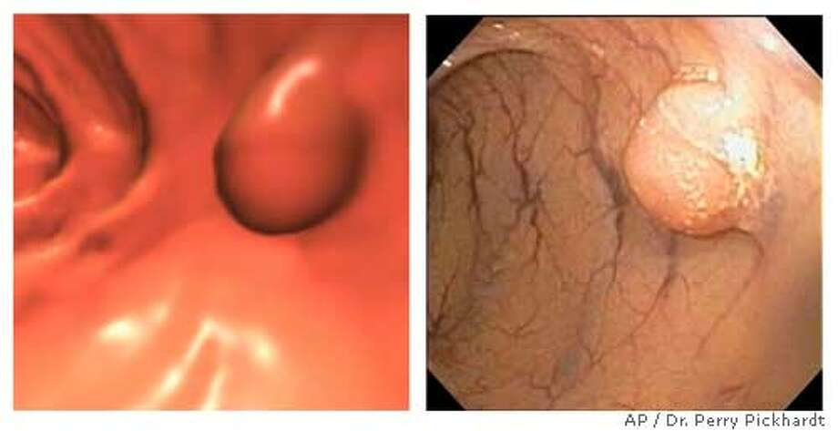 Photos released at the Radiological Society of North America's annual meeting in Chicago on Monday, Dec. 1, 2003, by Dr. Perry Pickhardt, lead author of new research on colonoscopy, show an 8-mm polyp as seen using software, left, and the same polyp using conventional colonoscopy methods. Pickhardt's research suggests that the procedure using computer-generated images to find abnormal growths in the colon is at least as accurate and less invasive than conventional colonoscopy. (APPhoto/Dr. Perry Pickhardt )