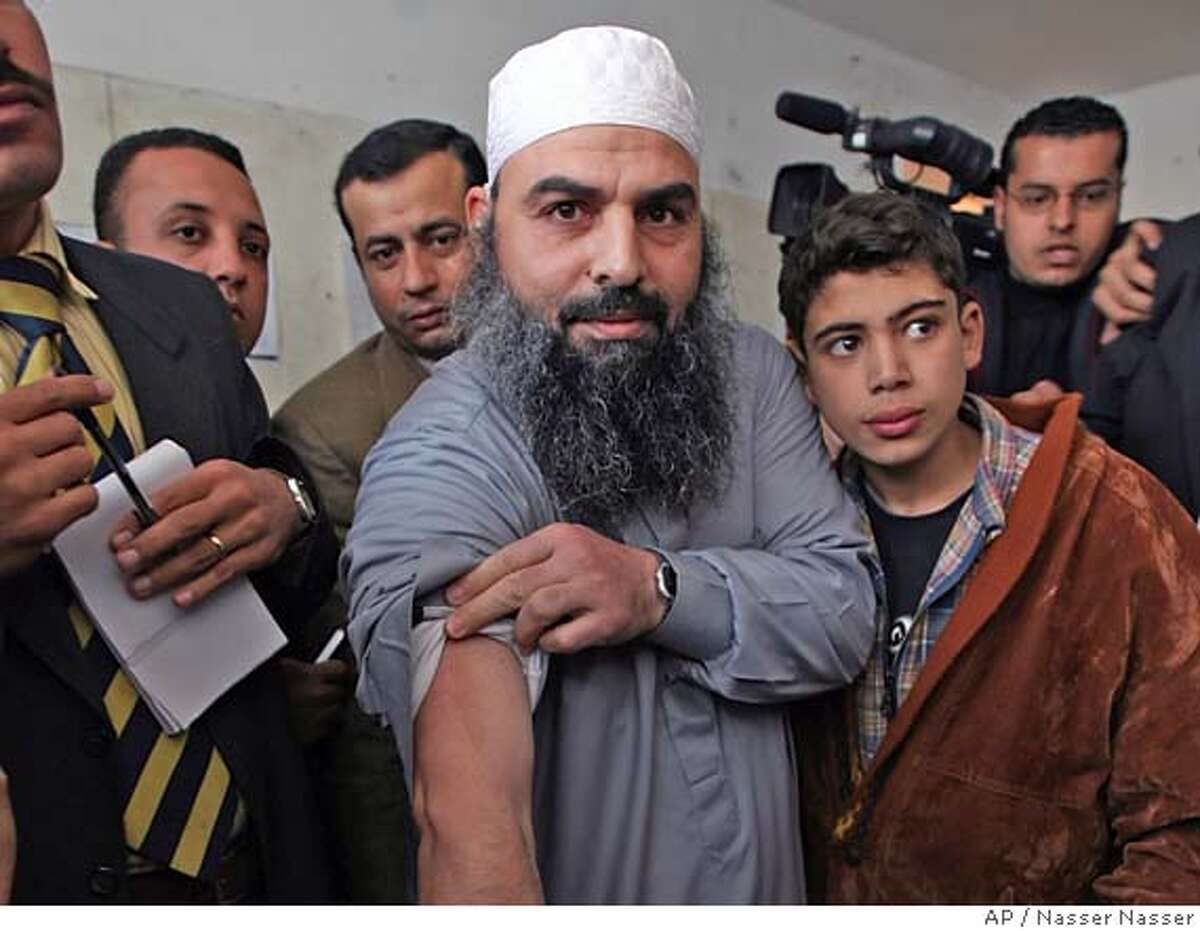 Egyptian cleric Osama Hassan Mustafa Nasr, known as Abu Omar, 44, shows a dark scar on his arm during his first public appearance since he was released from Egyptian custody last week, at a court house in Alexandria, Egypt Thursday, Feb. 22, 2007. An Egyptian cleric allegedly kidnapped by CIA agents off the streets of an Italian city and taken to Egypt said Thursday he was tortured in an Egyptian prison and that he wants to return to Italy. (AP Photo/Nasser Nasser) Ran on: 02-23-2007 Osama Moustafa Hassan Nasr says he was tortured after the CIA shipped him to Egypt.