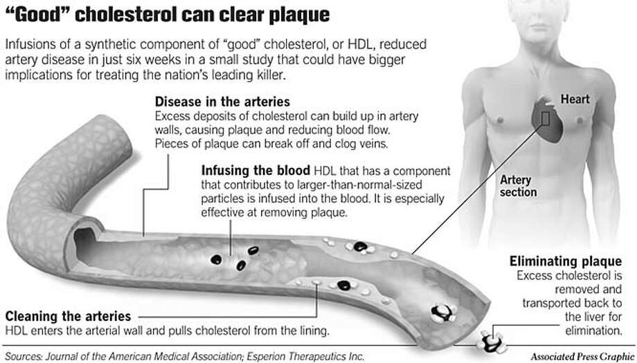 """""""Good"""" cholesterol can clear plaque. Associated Press Graphic"""