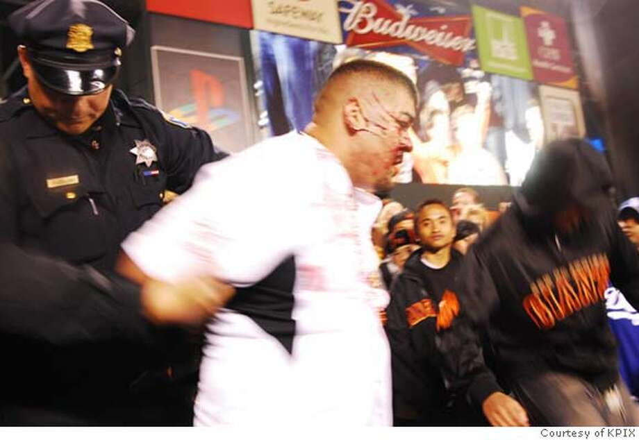 """Miguel Ochoa, 24, of Mountain View, center, wearing white t-shirt, is an avid Giants fan who says a police officer hit him without provocation at a July 13 Giants-Dodgers game at AT&T Park. The officer, Anton Collins, says he did not overreact in the incident and it was """"just an arrest.'' Collins has been sued twice before in lawsuits alleging excessive force and taxpayers have paid settlements in those cases totaling $214,000.These photos of Ochoa's face, taken by another fan, were obtained by CBS-5 News/San Francisco.  Photos courtesy KPIX. Photo: HO"""
