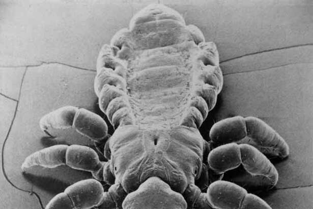 10/24/1976 - Head Louse -- This unusual greatly magnified photograph of the human head louse was taken with an electron microscope. The country's leading lice cure marketer, Norcliff Thayer Inc., report that infestations of head lice have reached epidemic proportions in many areas of the U.S. HOUCHRON CAPTION (09/04/2001): Although a head louse doesn't carry disease, its bites, which inject an irritating anticoagulant, can become open to secondary infections from constant itching. HOUCHRON CAPTION (10/07/2004) SECMETRO: IRRITATING: Although a louse doesn't carry disease, it's bite, which inject an anticoagulant, can become open to infection from scratching.