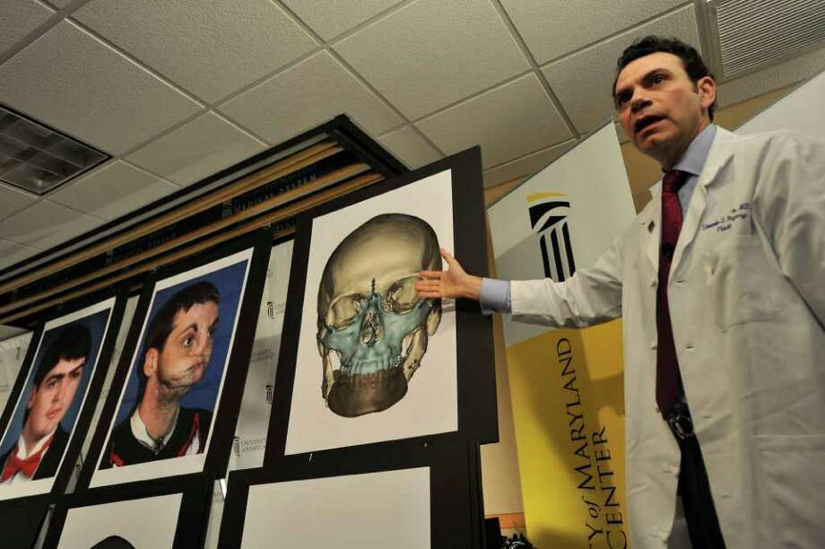 Eduardo D. Rodriguez, M.D., Chief of Plastic, Reconstructive and Maxillofacial surgery at the University Medical Center, explains the most extensive full face transplant completed to date performed on Richard Lee Norris, pictured at left, during a news conference Tuesday, March 27,2012 at the University of Maryland Medical Center in Baltimore.(AP Photo/Gail Burton) Photo: Gail Burton