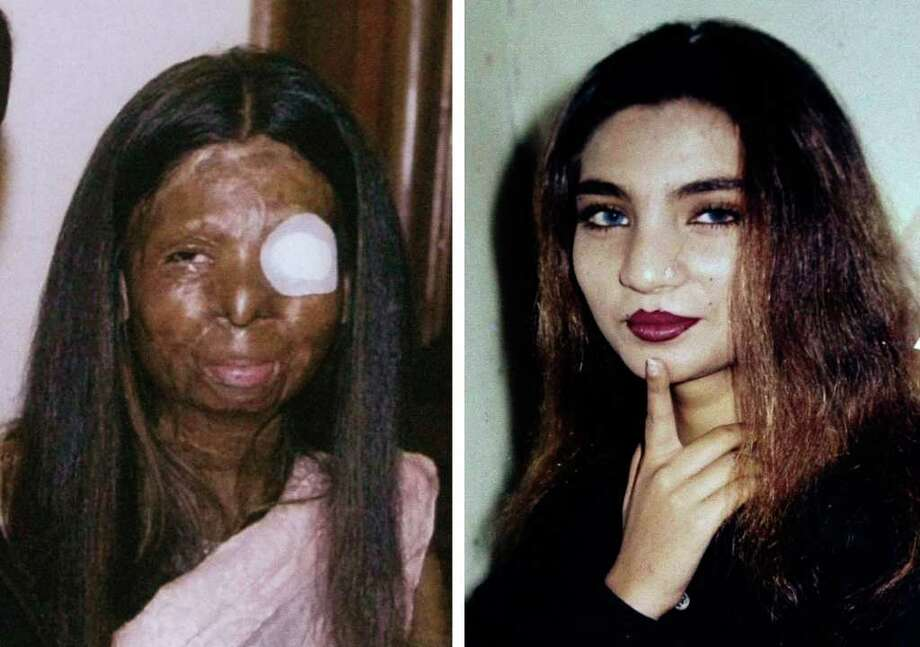 This combination of two undated photos provide by the family shows on the left, Fakhra Younus, some time after an acid attack twelve years ago, allegedly carried out by her then-husband, an ex-lawmaker and son of a political powerhouse; and on the right, Younus sometime before the attack. Younus, who had endured more than three dozen surgeries over more than a decade to repair her severely damaged face and body, finally decided life was no longer worth living. The 33-year-old former dancing girl jumped from the sixth floor of a building in Rome March 17, 2012, where she had been living and receiving treatment. (AP Photo/Courtesy Fakhra Younus Family)