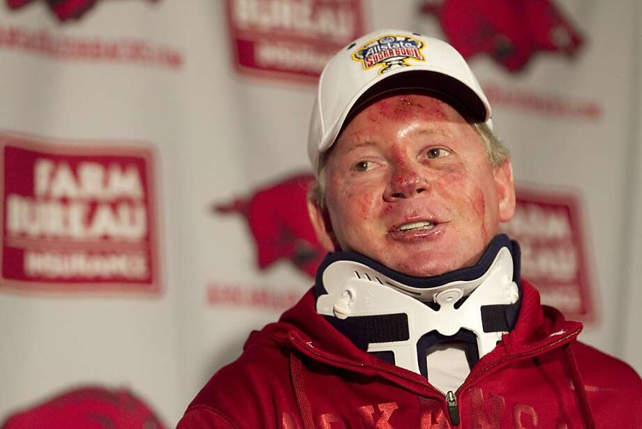 Arkansas football coach Bobby Petrino speaks during a news conference at a Fayetteville, Ark., on Tuesday, April 3, 2012, after being released from a hospital after he was injured in a motorcycle accident on Sunday, April 1. The 51-year-old says he was not wearing a helmet at the time of the crash, which occurred on Arkansas Highway 16 in Madison County _ about 20 miles southeast of Fayetteville. State law does not require an adult rider wear a helmet. (AP Photo/Gareth Patterson) Photo: Gareth Patterson, Associated Press