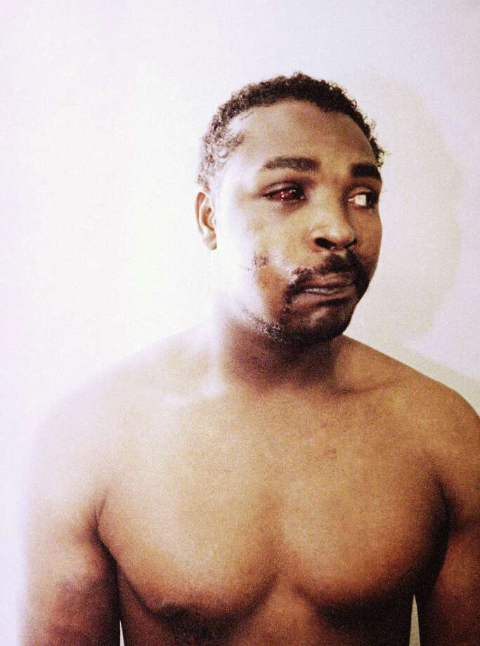 This file photo of Rodney King was taken three days after his videotaped beating in Los Angeles on March 6, 1991. The photo is one of three introduced into evidence by the prosecution in the trial of four LAPD officers in a Simi Valley, California Courtroom, March 24, 1992.  The acquittal of four police officers in the videotaped beating of King sparked rioting that spread across the city and into neighboring suburbs. Cars were demolished and homes and businesses were burned. Before order was restored, 55 people were dead, 2,300 injured and more than 1,500 buildings were damaged or destroyed.  (AP Photo/Pool,File) Photo: Anonymous
