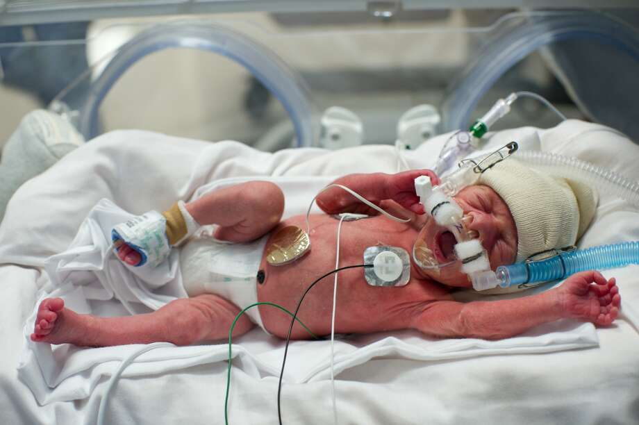 Benjamin Perkins. (A. Kramer/Texas Children's Hospital)