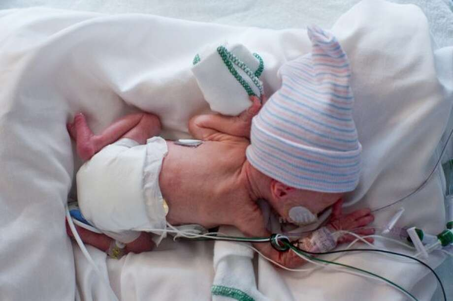 The babies were born 10 weeks early. (A. Kramer / Texas Childrens Hospital)