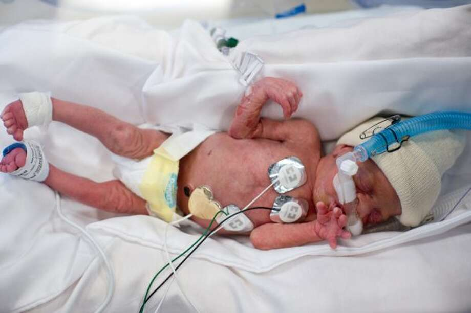 Baby Caroline Perkins (A. Kramer / Texas Childrens Hospital)