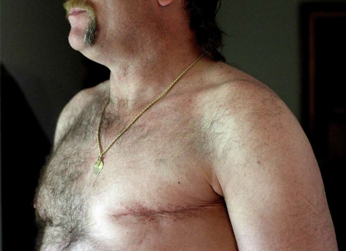 In this May 3, 2012 photo, a surgery scar is seen on breast cancer survivor Robert Kaitz's left breast in his home in Severna Park, Md. Kaitz thought a small growth under his left nipple was just a harmless cyst. By the time he had it checked out in 2006, almost two years later, the lump had started to hurt. The diagnosis was a shock.