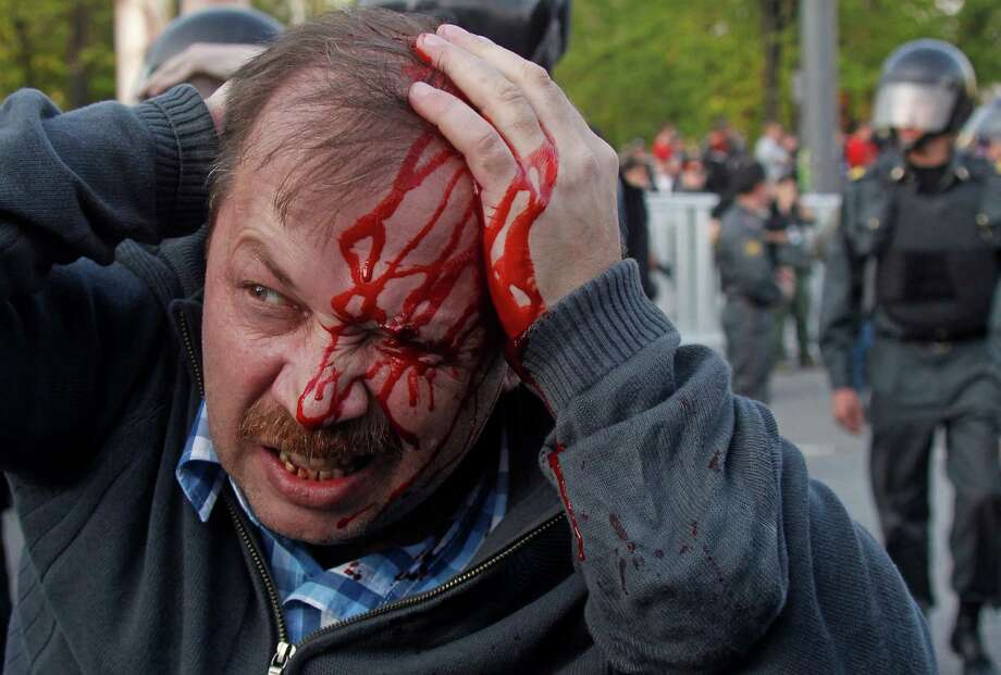 A wounded opposition protester winces in pain during a rally in Moscow on Sunday, May 6, 2012. Riot police in Moscow have begun arresting protesters who were trying to reach the Kremlin in a demonstration on the eve of Vladimir Putin's inauguration as president. (AP Photo/Mikhail Metzel) Photo: Mikhail Metzel, Associated Press / AP