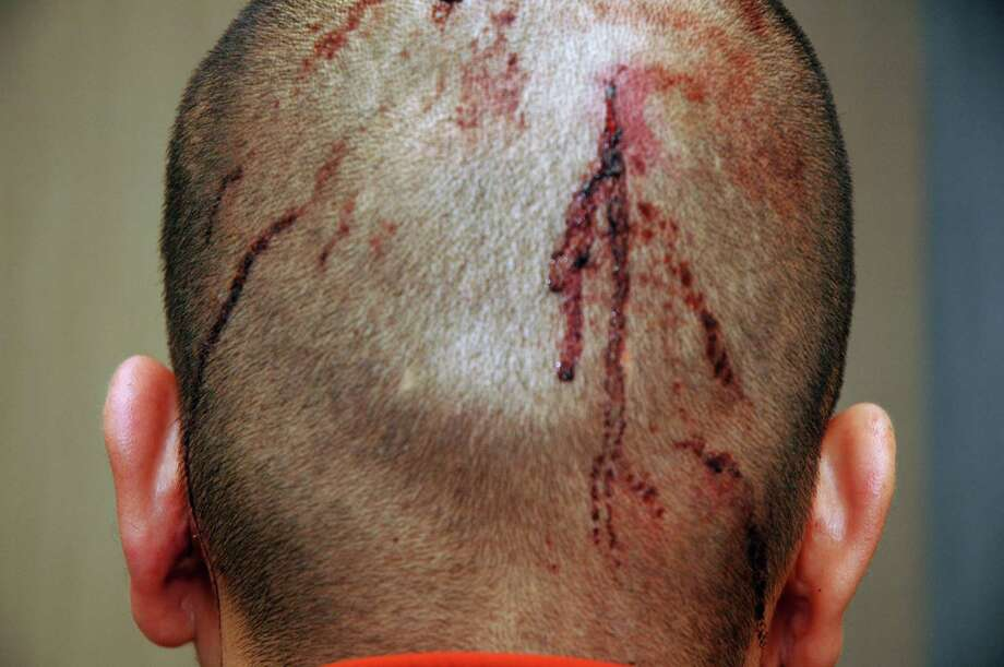 Feb. 27, 2012 – Claiming self defense, the gunman George Zimmerman recounts his version of events to Sanford Police. Photos taken during the session show blood on the back of Zimmerman's head and across his nose. (AP Photo/State Attorney's Office)