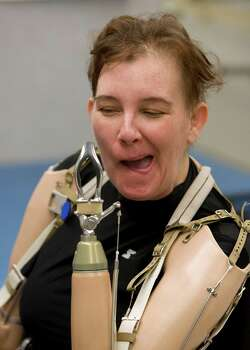 (l-r) Katy Hayes scratches her face after receiving her new conventional prosthetic arms Thursday, June 24, 2010, at Muilenburg Prosthetics in Houston, Texas.  After hearing of Katy's story  Ted Muilenburg donated the prosthetic arms to Katy Hayes.   Shortly after the birth of Katy's daughter, Arielle, Katy Hayes began to experience intense pain and went to the local hospital. She is currently battling for her life after a series of complications resulting from a Streptococcal A infection. As a result, Katy has experienced multiple organ failure and the loss of her arms and legs. Photo: Billy Smith II, Houston Chronicle / Houston Chronicle