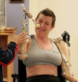 With the help of physical therapist Katy Hays struggles with her prosthetic arms to get a bite while rehabbing at The Institute for Rehabilitation and Research Memorial Hermann, in Houston, Tuesday September 22, 2010. After the birth of Katy Hayes' daughter, Arielle, Katy began to experience a series of complications resulting from a Streptococcal A infection. As a result, Katy experienced multiple organ failure and the loss of her arms and legs. Photo: Billy Smith II, Houston Chronicle / Houston Chronicle