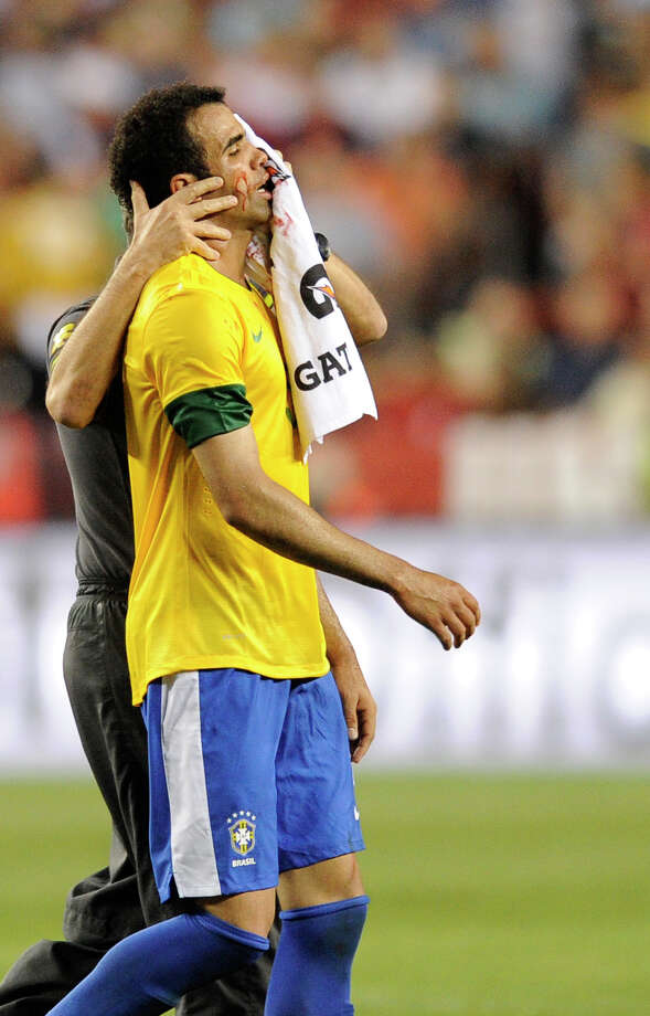 Brazil's Sandro comes off the field after an injury during the first half of an international friendly soccer game against the United States, Wednesday, May 30, 2012, in Landover, Md. (AP Photo/Nick Wass) Photo: Nick Wass, Associated Press / FR67404 AP