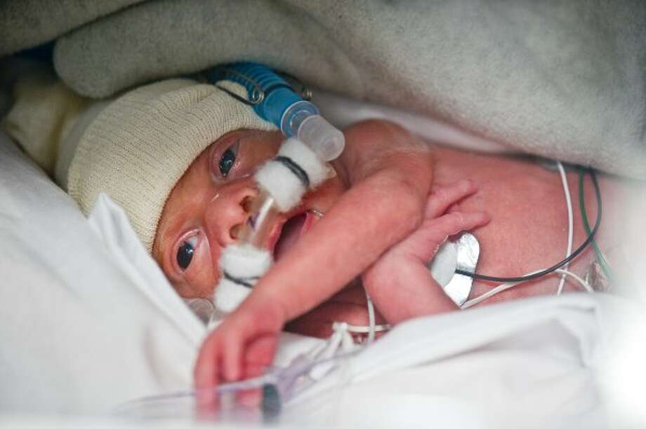 Baby Benjamin Perkins (A. Kramer / Texas Childrens Hospital)