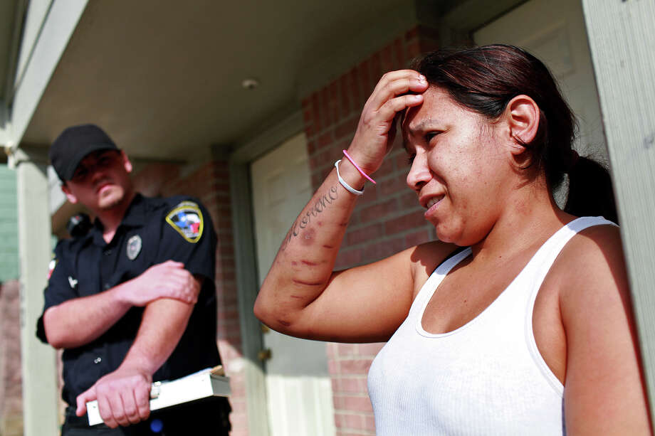 The wounds caused by two dogs attacking her are still visible and healing on the arms and legs of Micahela Garcia as she talks with Animal Care Services Officer Joel Skidmore outside her apartment in San Antonio on Thursday, Feb. 2, 2012. Photo: Lisa Krantz, SAN ANTONIO EXPRESS-NEWS / SAN ANTONIO EXPRESS-NEWS