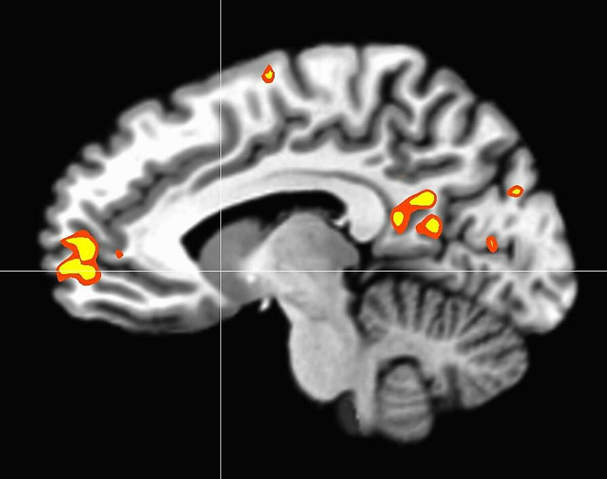 A brain scan of a monk actively extending compassion shows activity in the medial prefrontal cortex, an area of the brain associated with reward processing.