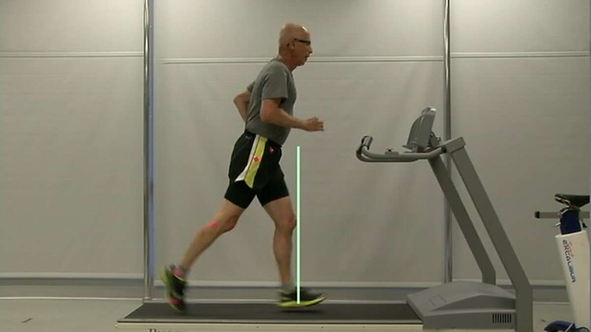 Bruce Coury on a treadmill during his time at RunSafe clinic.