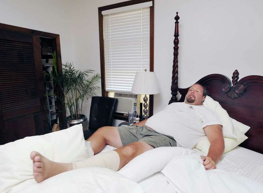 Gus Bertolf Jr. in bed at his Cos Cob home Tuesday, July 24, 2012. Bertolf was struck by lightning last week while working on a construction job at a Clapboard Ridge Road home. Photo: Bob Luckey / Greenwich Time