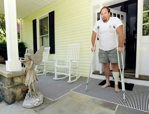 Gus Bertolf Jr. on crutches at his Cos Cob home Tuesday, July 24, 2012. Bertolf was struck by lightning last week while working on a construction job at a Clapboard Ridge Road home. Photo: Bob Luckey / Greenwich Time