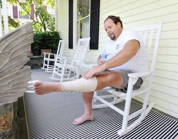 Gus Bertolf Jr. touches his bandaged left leg while sitting on the porch at his Cos Cob home Tuesday, July 24, 2012. Bertolf was struck by lightning in his leg last week while working on a construction job at a Clapboard Ridge Road home. Photo: Bob Luckey / Greenwich Time