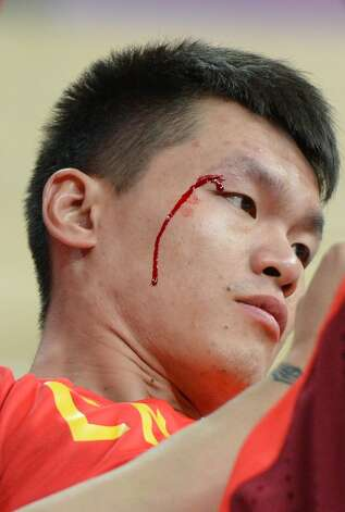 Chinese forward Zhu Fangyu bleeds during the men's preliminary round Groupe B basketball match Australia vs China of the London 2012 Olympic Games  on August 2, 2012 at the basketball arena in London. Australia won 49-23. (MARK RALSTON / AFP/Getty Images)