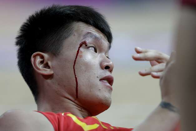 Blood runs down the face of China's Zhu Fangyu after he collided with another player during a preliminary men's basketball game against Australia at the 2012 Summer Olympics, Thursday, Aug. 2, 2012, in London. (Eric Gay / Associated Press)