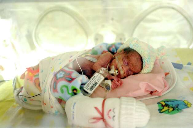 Caroline Fernandez, a premature infant, is being cared for in the newborn intensive care unit at Methodist Children's Hospital on Wednesday, July 25, 2012. Photo: Billy Calzada, San Antonio Express-News / © 2012 San Antonio Express-News