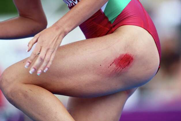 A runner has a raspberry on her leg during of the Women's Triathlon during the Triathlon at Hyde Park. Photo: Jeff J Mitchell, Getty Images / 2012 Getty Images