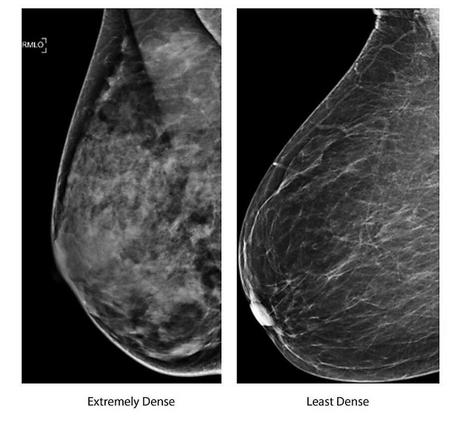 Women with high breast density are more at risk for developing breast cancer, but not dying from it. Photo: Associated Press