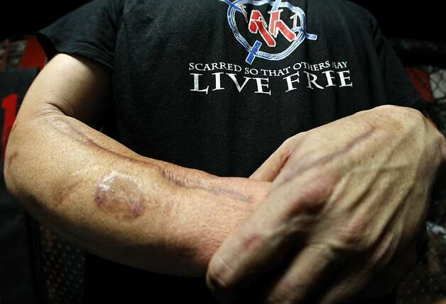 Former U.S. Army Staff Sgt. Travis Henschel, 36, shows battle scars from the war in Iraq. Photo: Don Bartletti, McClatchy-Tribune News Service
