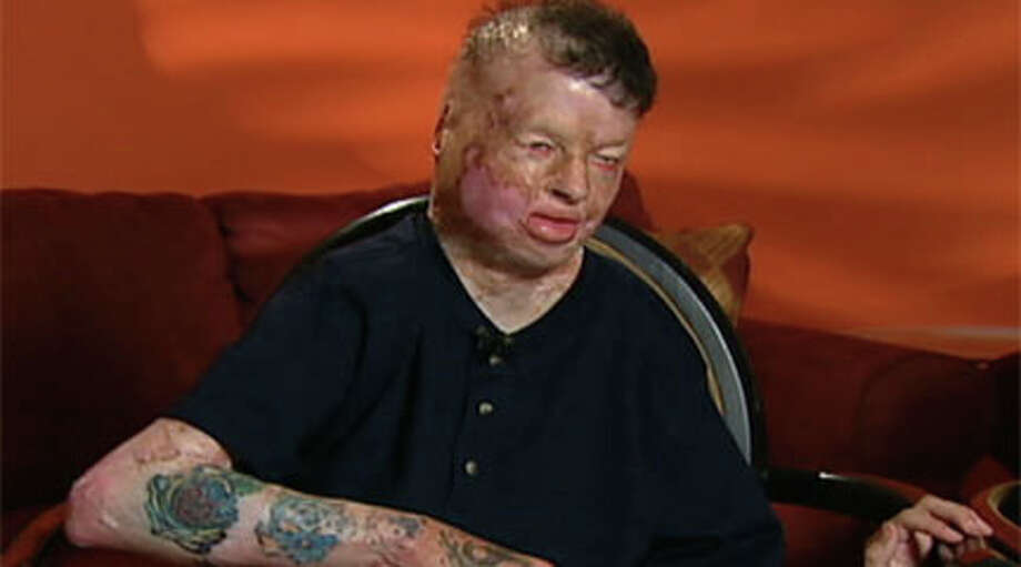 Robbie Middleton was severely burned in an attack as a child. (Photo courtesy of KHOU)  / handout