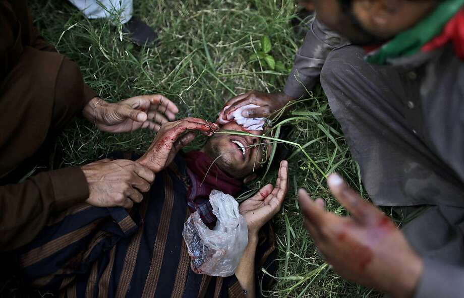 A wounded Pakistani protester is helped by others during clashes with riot police that erupted as protestors tried to approach the U.S. embassy, in Islamabad, Pakistan, Friday, Sept. 21, 2012. Pakistani police opened fire on rioters who were torching a cinema during a protest against an anti-Islam film Friday, and security forces clashed with demonstrators in several other cities in Pakistan on a holiday declared by the government so people could rally against the video. Thousands of people protested in several other countries, some of them burning American flags and effigies of President Barack Obama. (AP Photo/Muhammed Muheisen) Photo: Muhammed Muheisen, Associated Press