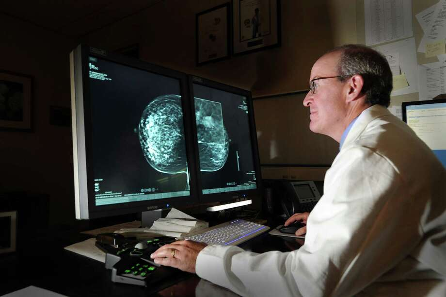 Dr. David Gruen, Stamford Hospital director of women's imaging and co-director of breast cancer, views three-dimensional digital images of a pair of breasts, one with a tumor, that were rendered by the hospital's digital tomosynthesis system at the Tully Health Center, Stamford, Thursday, Sept. 27, 2012. Photo: Bob Luckey / Greenwich Time