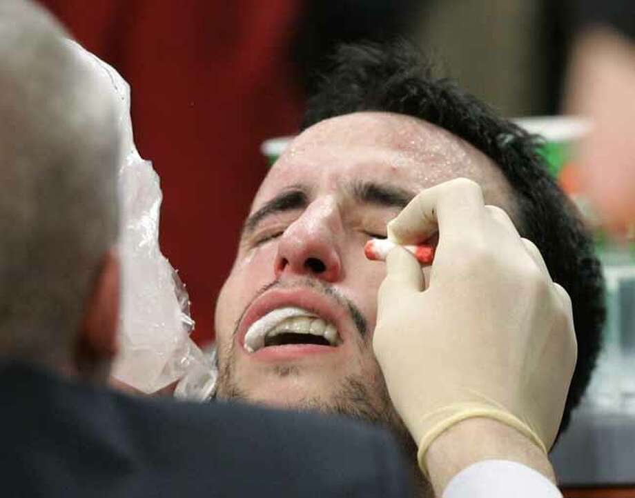 The Spurs' Manu Ginobili receives treatment after getting injured defending Los Angeles Lakers' Kobe Bryant in the closing seconds of the fourth quarter on Jan. 28, 2007, in Los Angeles. San Antonio won 96-94. Photo: Kevork Djansezian, AP / AP