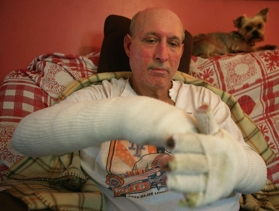Randy Fera, 59 of Stratford, does a series of exercises to improve the range of motion in his hands and arms after being badly burned in a propane explosion at a Shelton home on September 10. Photo: Brian A. Pounds / Connecticut Post