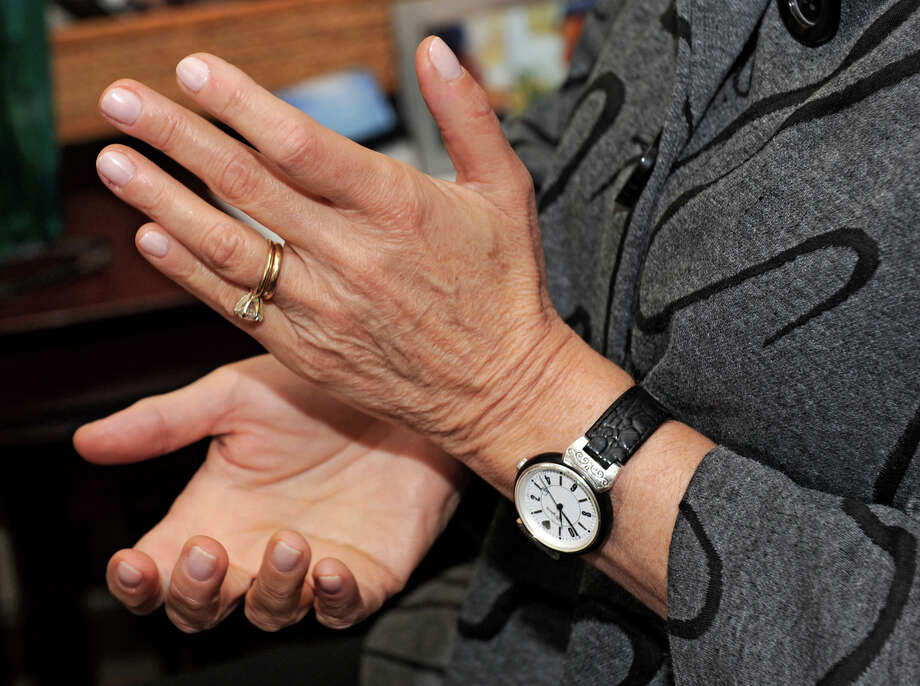 Therapist Mary Sise goes through the same motions with her patients when she does therapy such as tapping the bottom of her hand at the Center for Integrated Psychotherapy Friday, Oct. 12, 2012 in Latham, N.Y. Sise is working with reseachers at the University at Albany to see if Emotion Freedom Techniqe, a type of therapy, helps people who developed PTSD after suffering a heart attack. (Lori Van Buren / Times Union) Photo: Lori Van Buren