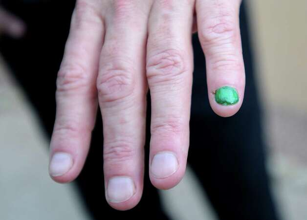 Charlie Hewitt, who has cancer of the liver, shows his green fingernail, which is a symbol of solidarity with other people with liver cancer. Photo: Billy Calzada, San Antonio Express-News / © 2012 San Antonio Express-News