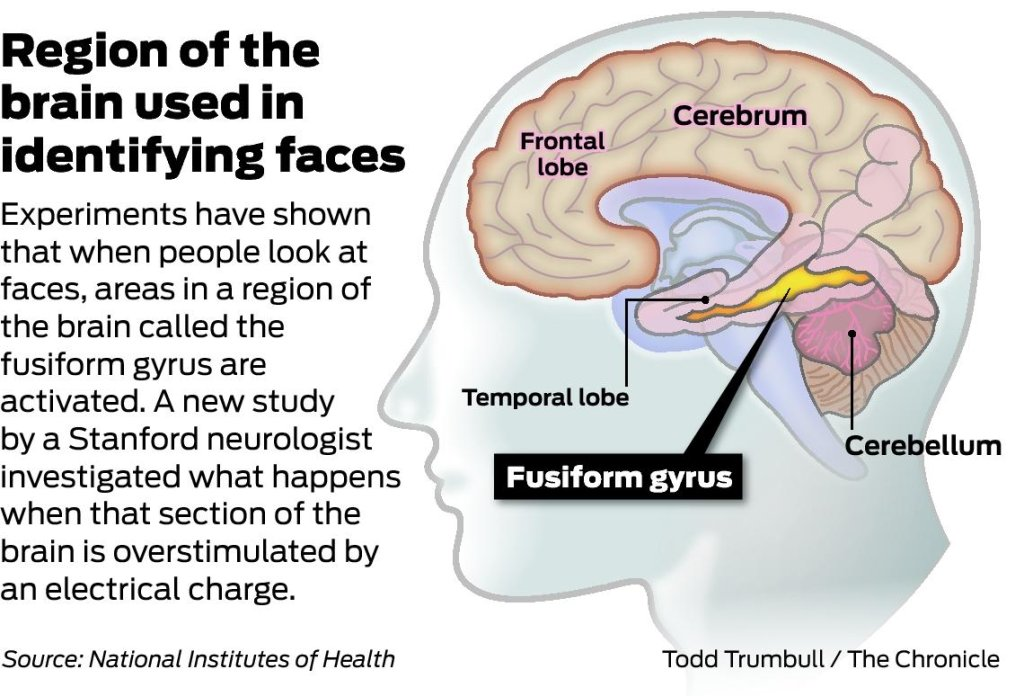 debate over roles of the fusiform face area Known as the fusiform face area (ffa) activity in this  the involvement of the left hemisphere in face recognition is still a matter of debate some researchers  they perform different roles according to this point of view, the right hemisphere processes faces in an.