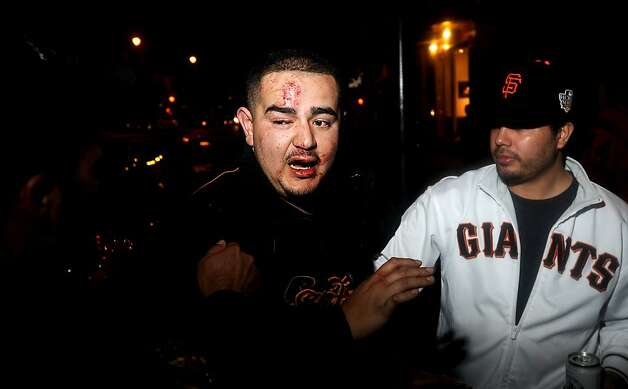 A San Francisco Giants fan gets help from police officers and friends after sustaining injuries during celebrations early Monday, Oct. 29, 2012, in San Francisco's Mission district after the Giants defeated the Detroit Tigers to win baseball's World Series on Sunday, Oct. 28. Photo: Noah Berger, Associated Press