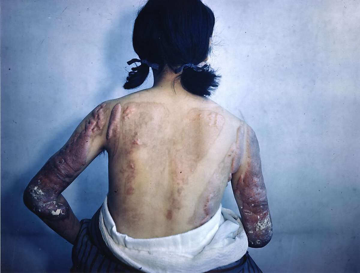 A still from the documentary series OLIVER STONE'S UNTOLD HISTORY OF THE UNITED STATES. Burned Skin