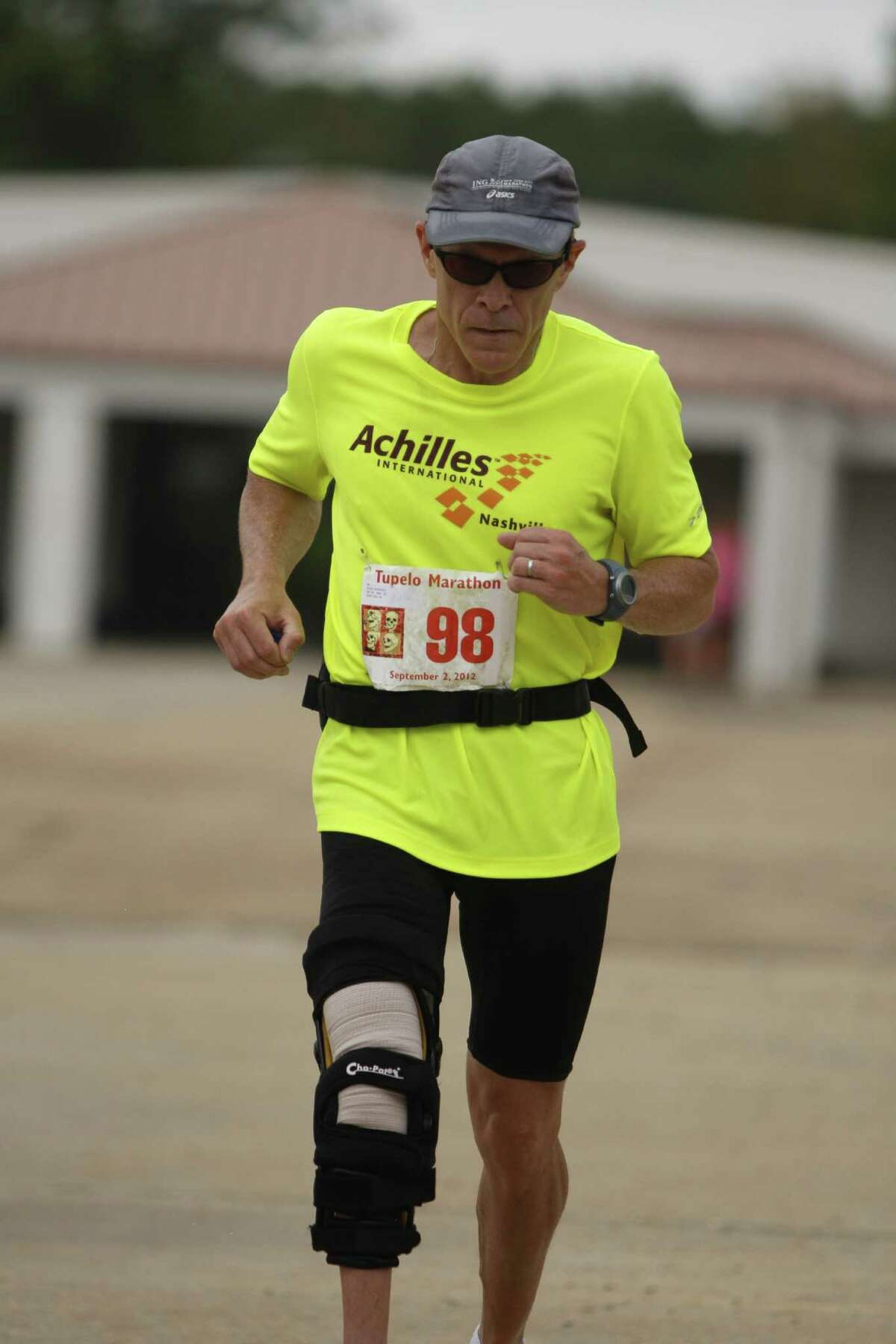 Tony Grassi, a 52-year-old marathon runner who is a member of Achilles International, a nonprofit organization that helps disabled athletes compete in mainstream events, runs in the September 2011 Tupelo Marathon. Grassi lives in Chattanooga, Tenn. Grassi has congenital fibular hemimelia, or no fibula bone in his right leg, the same condition as that of South African sprinter Oscar Pistorius, who participated in the Olympic Games earlier this year, running on carbon-fiber prosthetics. (Pistorius? legs were amputated when he was 11 months old).