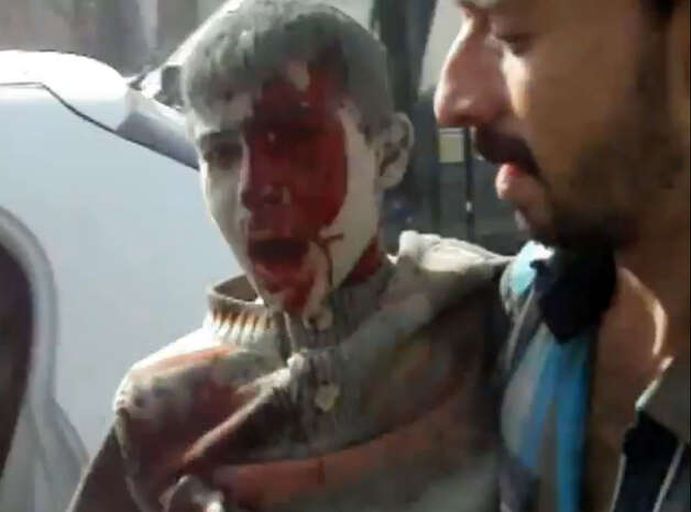 This image taken from video obtained from Shaam News Network, which has been authenticated based on its contents and an Associated Press journalist who saw a plane bomb an area around the Syrian-Turkish border town of Ras al-Ayn, shows a wounded Syrian youth being placed in a car moments after an airstrike by Syrian warplanes in Ras al-Ayn, Syria, Monday, Nov. 12, 2012. (AP Photo/Shaam News Network via AP video) Photo: Anonymous