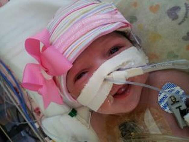 A baby girl who was born with her heart outside of her body is defying the odds and recovering after lifesaving surgery at Texas Children's Hospital, where she was born five weeks ago. Audrina Cardenas? condition was discovered during an ultrasound 16 weeks into her mother's pregnancy. The mother, from Midland, Texas, was referred to Texas Children's, where a team of doctors worked together on her care after she was born. Photo: Texas Children's Hospital / HC
