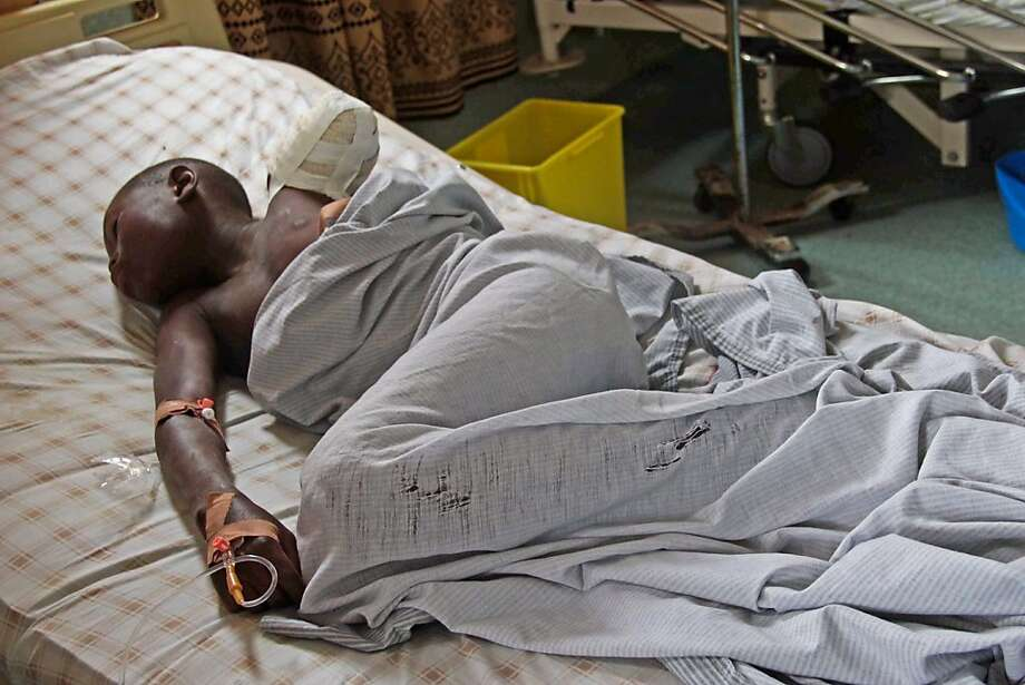 A 12-year-old boy whose arm was amputated lies in a hospital bed after he sustained a shrapnel wound in Goma during fighting between the Congolese army and M23 rebels. Photo: Melanie Gouby, Associated Press