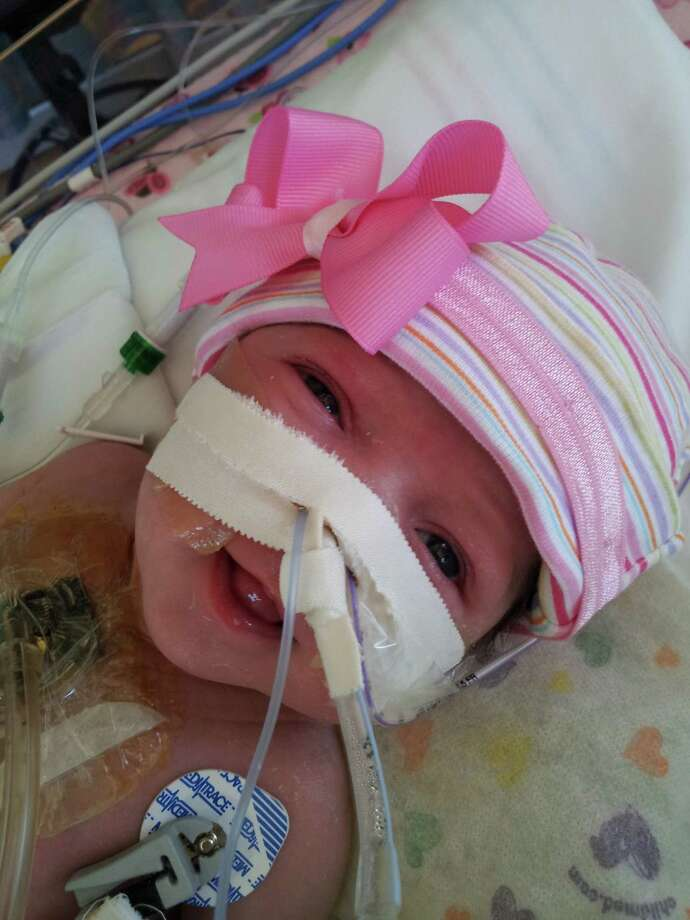 Audrina Cardenas, born at Texas Children's Hospital with her heart outside her body, is now 5 weeks old and defying the odds. / Texas Children's Hospital