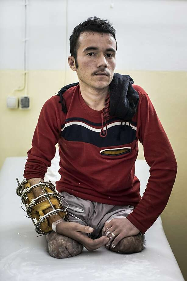 "ANA commando, Khairuddin Sultan, 21,  who joined the army with him 18 months ago, poses for a portrait after having a mold done for his prosthetic legs at the International Committee of the Red Cross (ICRC) orthopedic center on November 19, 2012 in Kabul, Afghanistan. Khairuddin, a double amputee, lost his legs when an IED exploded during a joint operation against the Taliban with U.S. special forces. The IED exploded while using a mine detector, sending shrapnel in to his outstretched hand and blowing up his legs. ""If they want me, i would like to go back, but if they (the government) would give me a salary i would like to stay home"" said the soldier. Photo: Daniel Berehulak, Getty Images"