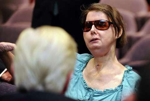 $4 million settlement in chimp attack lawsuit - Connecticut Post