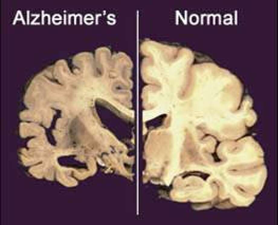 This  undated image provided by Merck & Co., shows a cross section of a normal brain (right) and one of a brain damaged by advanced Alzheimer's disease. Alzheimer's patients and their families, desperate for an effective treatment for the epidemic disease, there's hope from new studies starting up and insights from recent ones that didn't quite pan out. (AP Photo/Merck & Co.)