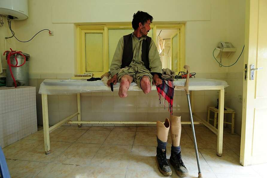 An Afghan amputee waits for the doctor at the International Committee of the Red Cross (ICRC) hospit